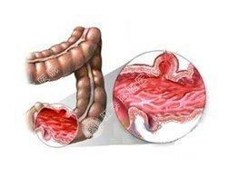 急性肠炎示意图