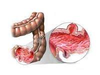 慢性肠炎怎么治防止反复?