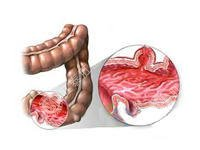 急性肠炎症状如何检查?