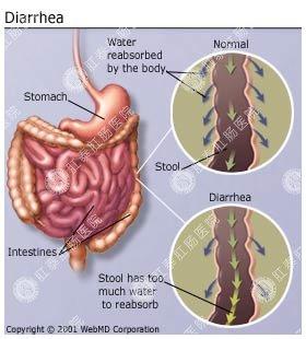 拉肚子会传染吗?有什么危害?